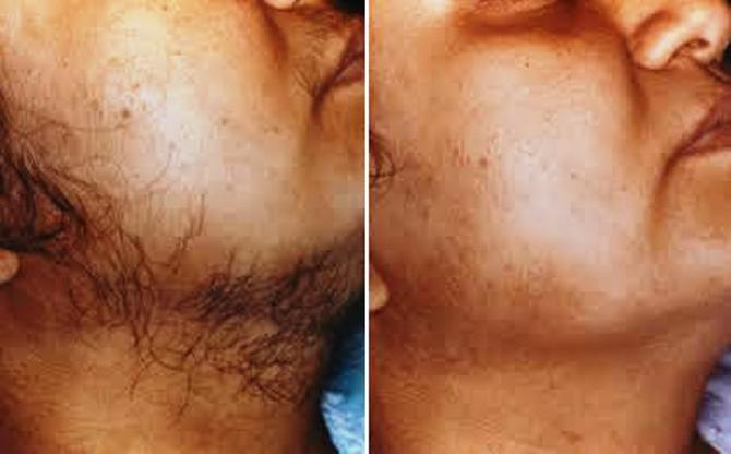 LASER HAIR REMOVAL CENTER IN RANCHI