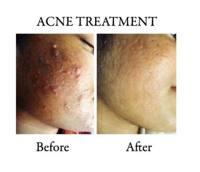 ACNE AND ACNE SCARS TREATMENT IN RANCHI