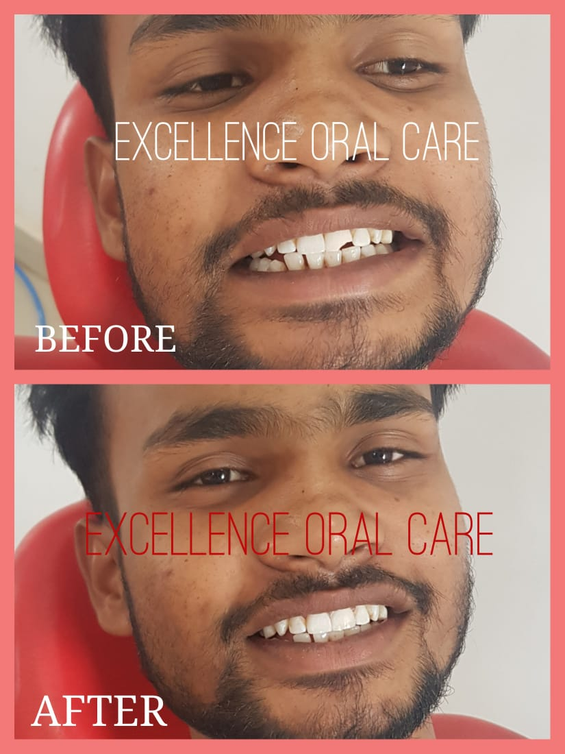 EXCELLENCE DENTAL CARE IN HAZARIBAGH